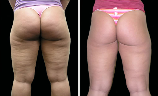 After 10 Treatments This Patient Had A 90 Reduction Of Cellulite Beforeafter