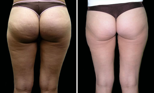 Beforeafter This Patient Had A Decrease In Cellulite Improvement Of Stretch Marks And Contouring Lift The Ocks