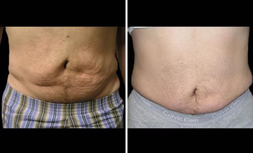 Weight loss treatment usa